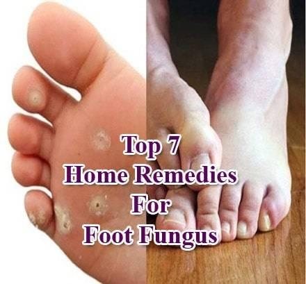 Top 7 Powerful Home Remedies For Foot Fungus