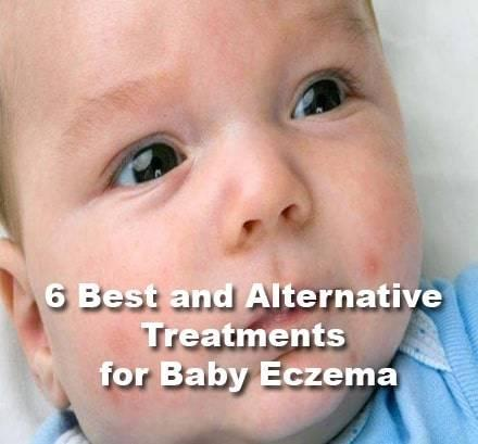6 Best and Alternative Treatments for Baby Eczema and Atopic